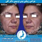 جراحی-بینی-ترمیمی-4
