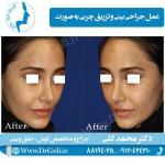 جراحی-بینی-و-تزریق-چربی-1