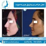 جراحی-بینی-و-تزریق-چربی-2