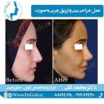جراحی-بینی-و-تزریق-چربی-3