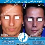 جراحی-بینی-1-15