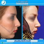 جراحی بینی 1-2