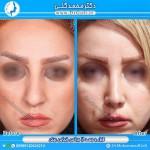 جراحی بینی 1-4
