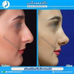 جراحی بینی 1-7