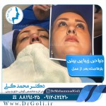 جراحی-بینی-2