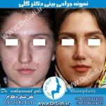جراحی-بینی-2-32
