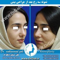 جراحی-بینی-2-46