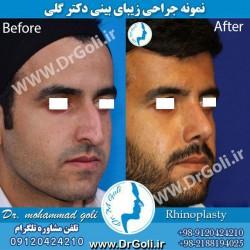 جراحی-بینی-2-9