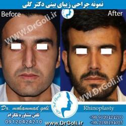 جراحی-بینی-3-8