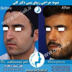 جراحی-بینی-4-2