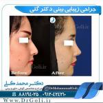 جراحی-بینی-5