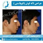 جراحی-گوش-برجسته-3
