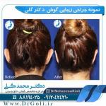 جراحی-گوش-2