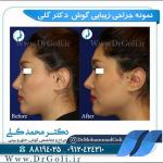 جراحی-گوش-4