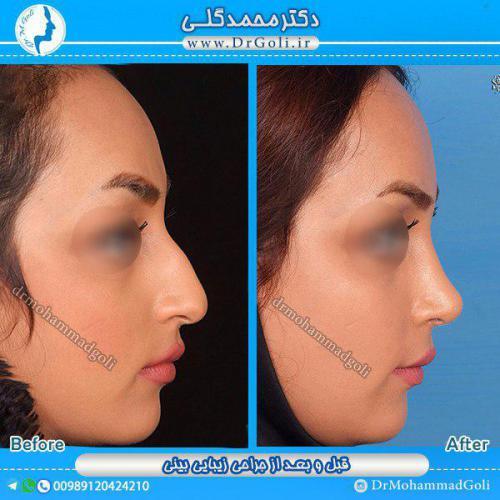 جراحی بینی 1-1