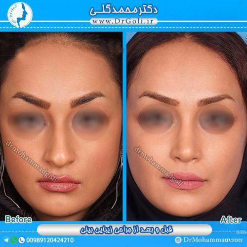 جراحی بینی 1-3