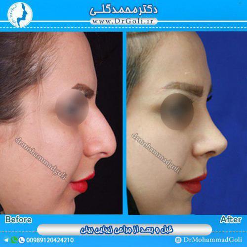 جراحی بینی 1-5