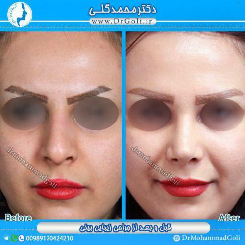 جراحی بینی 1-6
