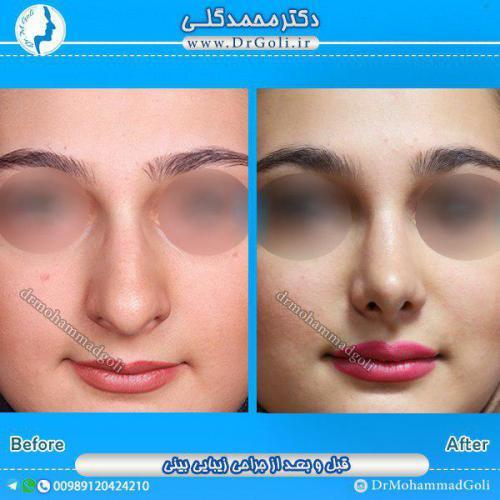 جراحی بینی 1-8