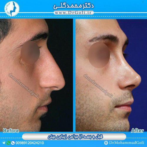 جراحی بینی 1-9